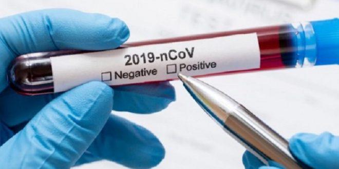 U OBŽ 12 novopozitivnih na koronavirus